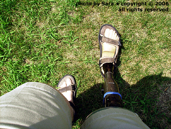 Downhill on grass, prosthetic foot foremost.